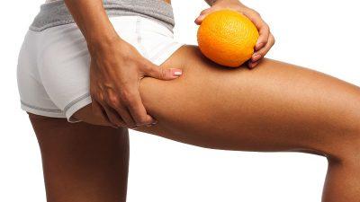Celulitis  ¿Cómo combatirla?